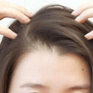 掉头发吃什么